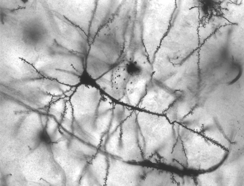 A black-and-white picture of a neuron.